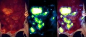Optical Imaging of RFP Ovarian Cancer Mets
